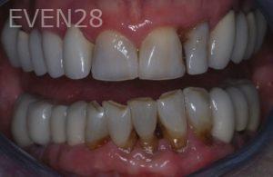 John-Gonzalez-Smile-Makeover-before-3