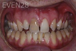 John-Gonzalez-Smile-Makeover-before-4