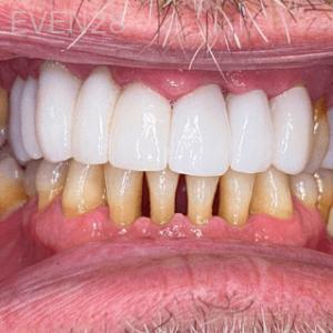 Johnny-Nigoghosian-Dental-Bridge-after-1