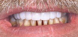 Johnny-Nigoghosian-Dental-Bridge-after-1b
