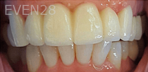 Johnny-Nigoghosian-Dental-Bridge-after-2