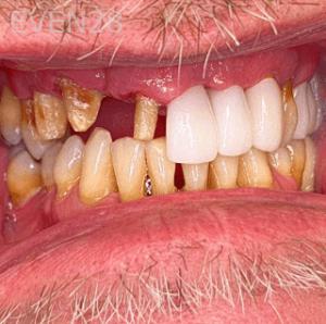 Johnny-Nigoghosian-Dental-Bridge-before-1