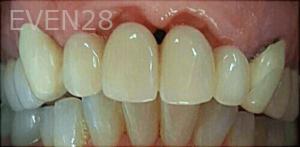 Johnny-Nigoghosian-Dental-Bridge-before-2
