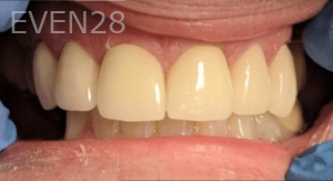 Johnny-Nigoghosian-Dental-Crown-after-2