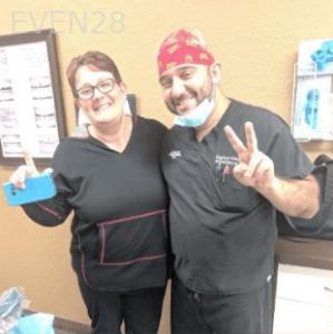 Johnny-Nigoghosian-Dental-Crown-after-2b