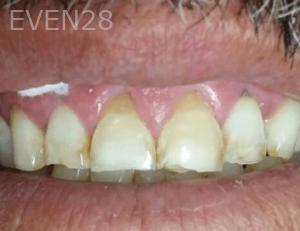 Johnny-Nigoghosian-Dental-Crown-after-3
