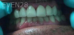 Johnny-Nigoghosian-Dental-Crown-after-3b