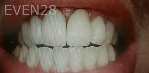 Johnny-Nigoghosian-Dental-Crown-after-4