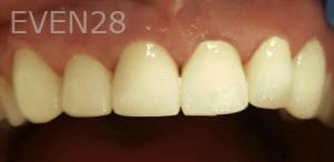 Johnny-Nigoghosian-Dental-Crown-after-5