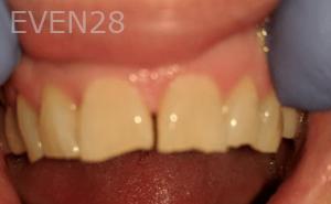 Johnny-Nigoghosian-Dental-Crown-before-2