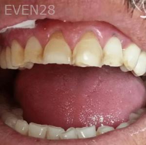Johnny-Nigoghosian-Dental-Crown-before-3