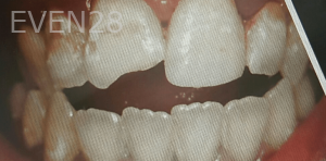 Johnnu-Nigoghosian-Dental-Crown-before-4