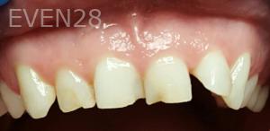 Johnny-Nigoghosian-Dental-Crown-before-5