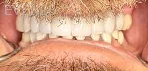Johnny-Nigoghosian-Dental-Implants-after-1