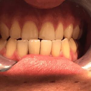 Johnnu-Nigoghosian-Dental-Implants-after-10