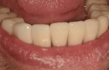 Johnnu-Nigoghosian-Dental-Implants-after-11-1
