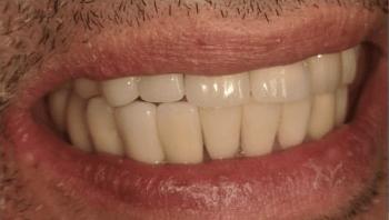 Johnnu-Nigoghosian-Dental-Implants-after-11b-1
