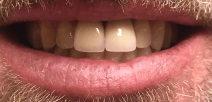 Johnnu-Nigoghosian-Dental-Implants-after-14-1