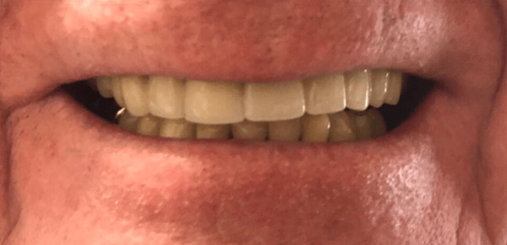 Johnnu-Nigoghosian-Dental-Implants-after-15-1