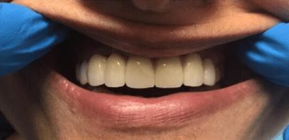 Johnnu-Nigoghosian-Dental-Implants-after-16-1