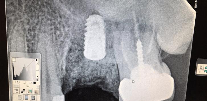 Johnnu-Nigoghosian-Dental-Implants-after-17-1