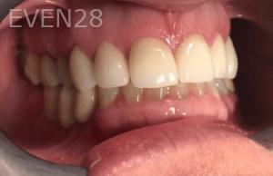 Johnny-Nigoghosian-Dental-Implants-after-2