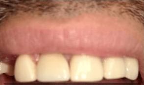 Johnnu-Nigoghosian-Dental-Implants-after-4