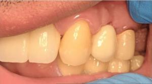 Johnny-Nigoghosian-Dental-Implants-after-5b
