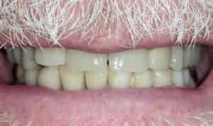 Johnnu-Nigoghosian-Dental-Implants-after-8