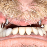 Johnnu-Nigoghosian-Dental-Implants-before-1-1