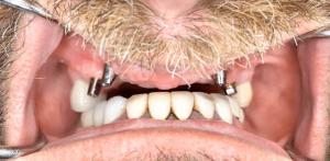 Johnny-Nigoghosian-Dental-Implants-before-1