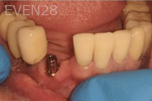 Johnnu-Nigoghosian-Dental-Implants-before-11-1