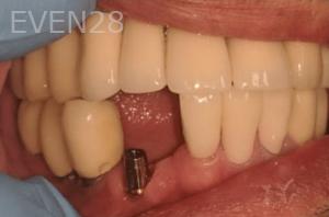 Johnny-Nigoghosian-Dental-Implants-before-11b-1