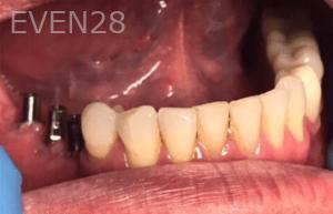 Johnny-Nigoghosian-Dental-Implants-before-12-1