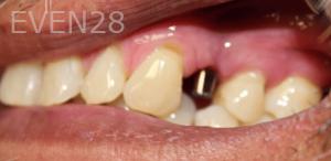 Johnny-Nigoghosian-Dental-Implants-before-13-1