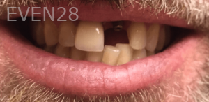 Johnny-Nigoghosian-Dental-Implants-before-14-1