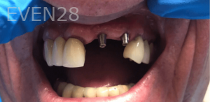 Johnny-Nigoghosian-Dental-Implants-before-15-1