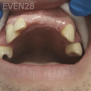 Johnny-Nigoghosian-Dental-Implants-before-18