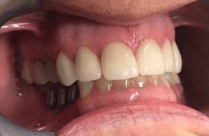 Johnny-Nigoghosian-Dental-Implants-before-2