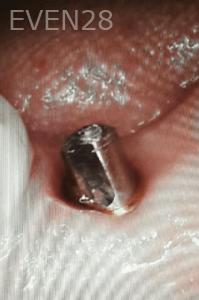 Johnnu-Nigoghosian-Dental-Implants-before-20