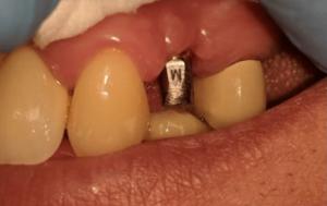 Johnnu-Nigoghosian-Dental-Implants-before-5b