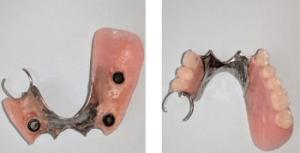Johnnu-Nigoghosian-Dental-Implants-before-8c