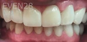 Johnnu-Nigoghosian-Full-Mouth-Restoration-after-2