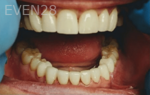 Johnny-Nigoghosian-Full-Mouth-Restoration-after-3