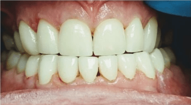 Johnny-Nigoghosian-Full-Mouth-Restoration-after-3b