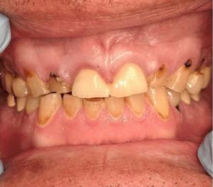 Johnny-Nigoghosian-Full-Mouth-Restoration-before-1