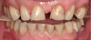 Johnny-Nigoghosian-Full-Mouth-Restoration-before-2