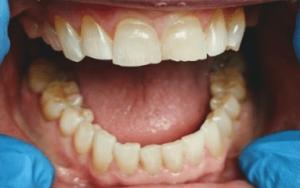 Johnny-Nigoghosian-Full-Mouth-Restoration-before-3