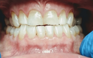Johnny-Nigoghosian-Full-Mouth-Restoration-before-3b