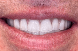 Johnny-Nigoghosian-Implant-Supported-Dentures-after-1